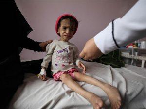Saudisk blokade af Yemen optrapper udbredelse af hungersnød; <br>FN-nødhjælpsagenturer rapporterer om 7 millioner i umiddelbar fare